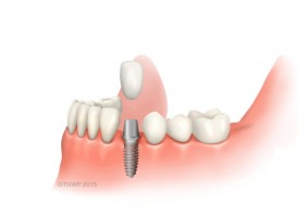 What to expect after dental implant treatment|aftercare